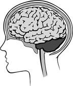 Ictus, scoperta capacità auto-riparatrice del cervello